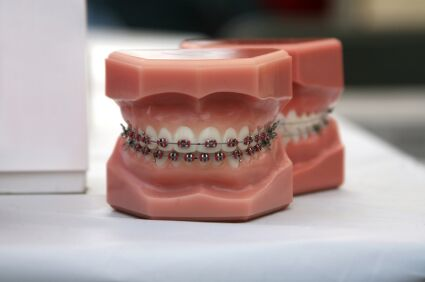 10 Things Useful To Know Before Getting Braces As An Adult