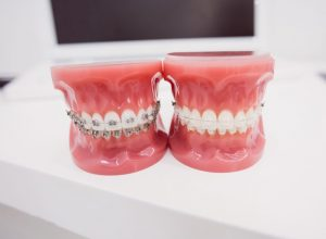 Ceramic brackets greatly improve the aesthetics where fixed braces are required.