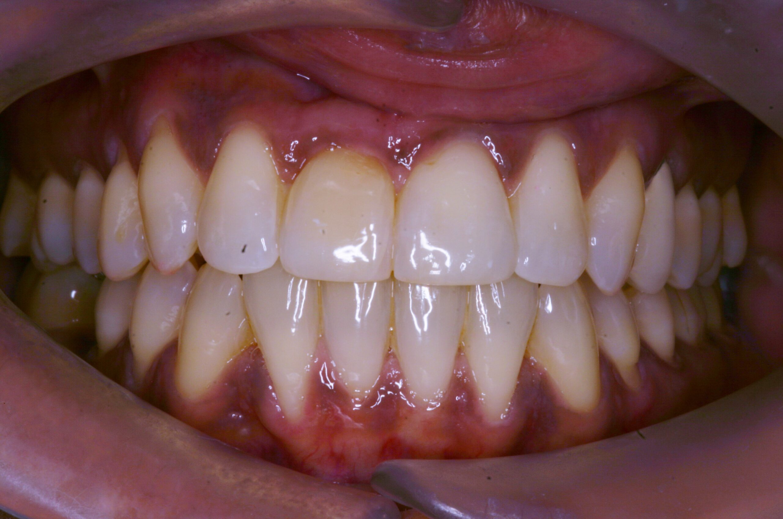 upper and lower lingual braces