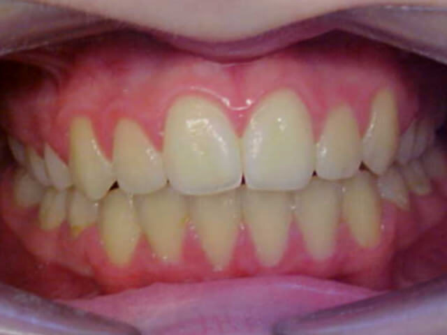 upper and lower fixed braces with extractions
