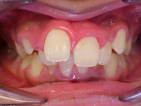 upper and lower fixed braces without extractions